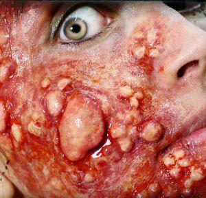 Outbreak Blistered Skin Prosthetics 4ct