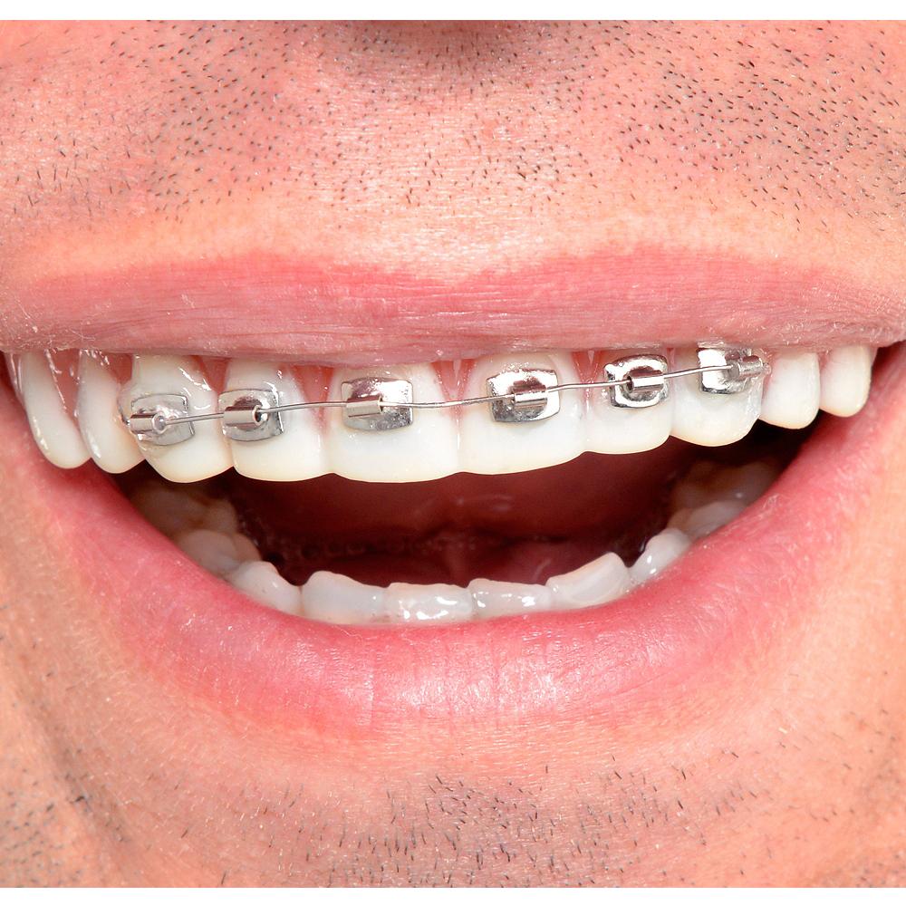 Christmas Braces Ideas.Fool All Braces Teeth
