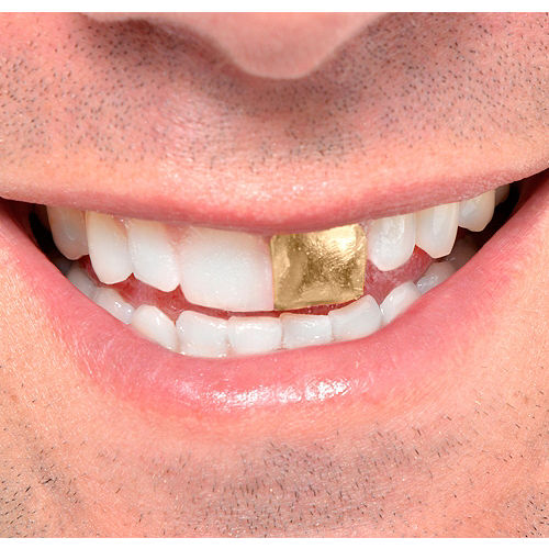Gold Tooth Image #1