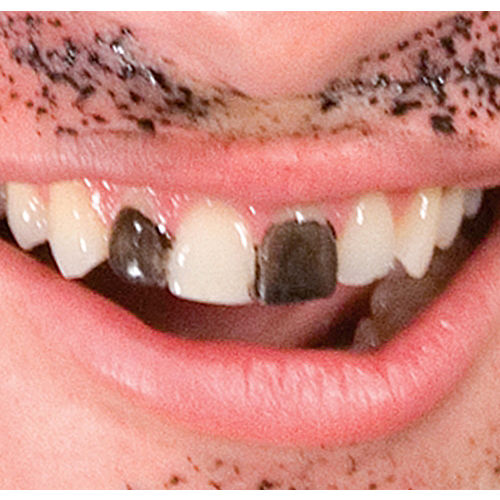 Temporary Tooth Color Image #1
