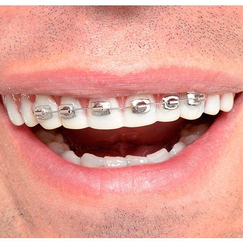 Fool-All Braces Teeth Image #1